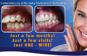 Fastbraces available in Horsham