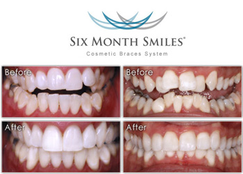 Six Months Smile available in Horsham